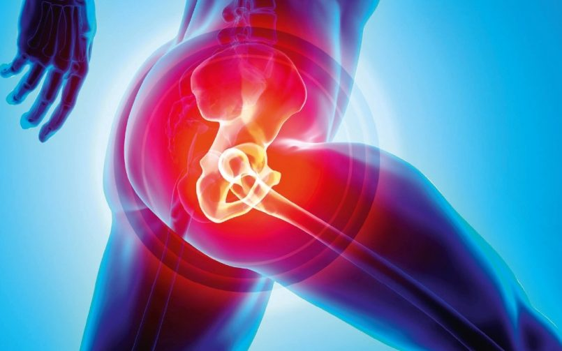Hip Replacement Surgery Guide- Why Would One Need It Surgery