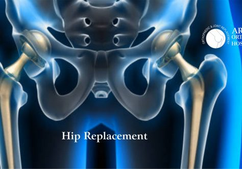 Hip Replacement Centre Chandigarh