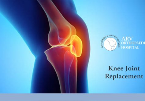 Best Knee Replacement Centre Chandigarh